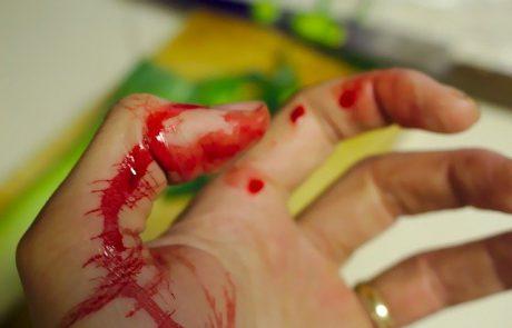 אישום: 2 גברים מכפר סבא תקפו תושב הוד השרון וגרמו לו לאבד את אצבעו