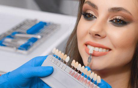 כמה עולים ציפויי חרסינה לשיניים?